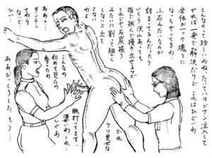大肛門大学|第19講 続・便秘体験告白【1】