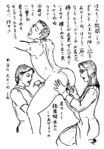 大肛門大学 第23講 便秘治療の進歩【2】