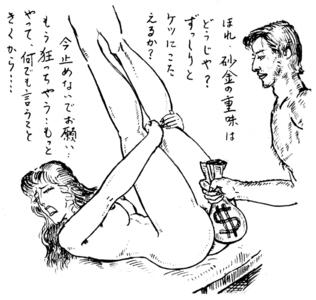 大肛門狂綺談 第33回 お尻の学校【2】